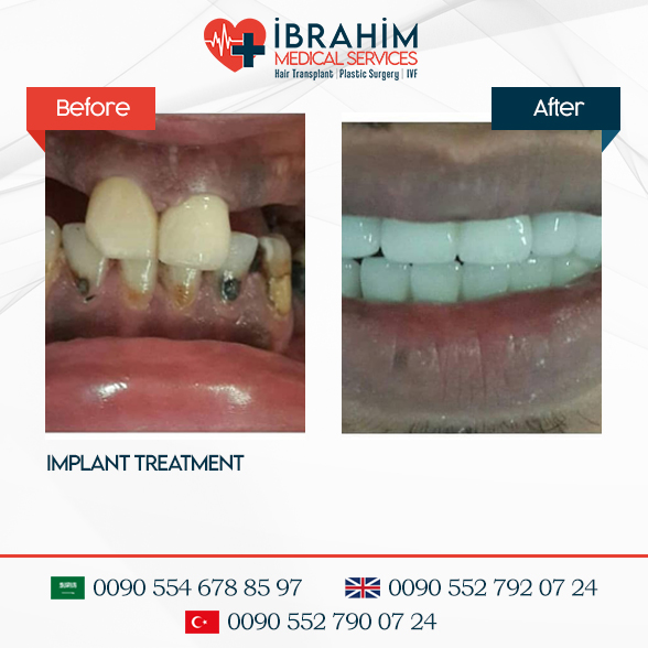 Dental Aesthetics Before & After