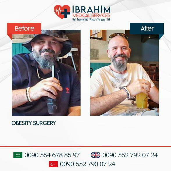 Obezite Cerrahisi Öncesi & Sonrası