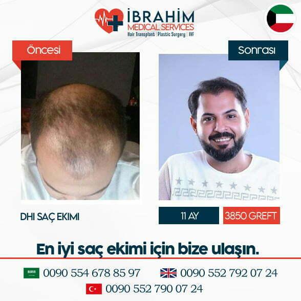 Saç Ekimi Öncesi & Sonrası