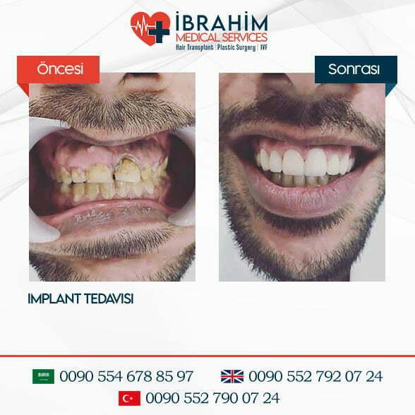 Dental Estetiği Öncesi & Sonrası