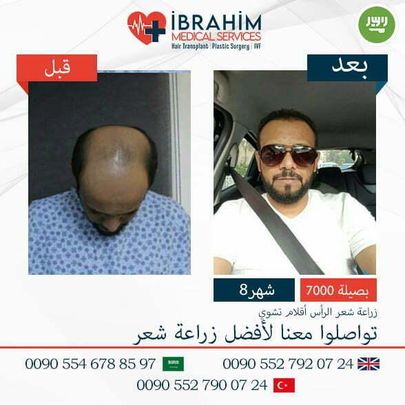 صور قبل و بعد زراعة الشعر