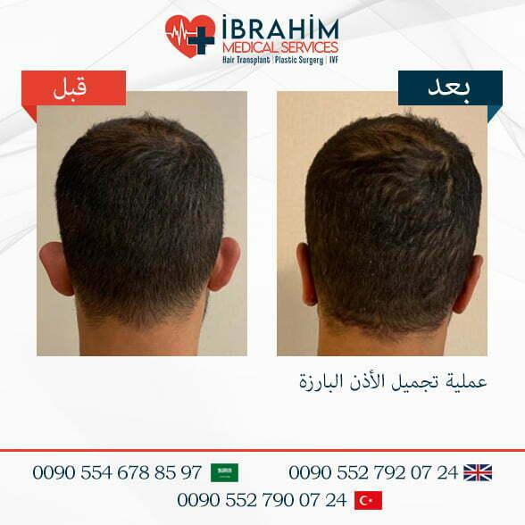 صور قبل و بعد عمليات التجميل