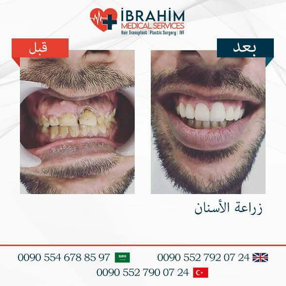 صور قبل و بعد تجميل الأسنان